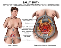 Medical-Legal Illustrations