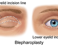 Does blepharoplasty improve ratings of age
