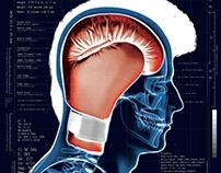 Neuropugilistica
