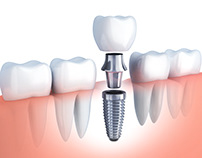 Dental Implants dentist HCMC, Vietnam