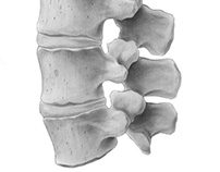 Lumbar Spine: Exploring Carbon Dust