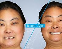 Zygomatic implants dentist