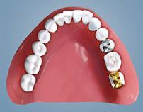 Zahnmedizinische Illustrationen