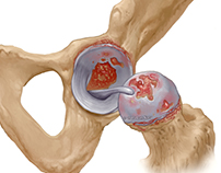 Osteoarthritis Detail of Injury