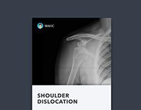 to commemorate my shoulder dislocation