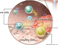 Bacillus Calmette-Guerin therapy for bladder cancer