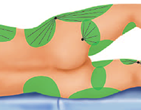Areas in the body that can undergo liposuction