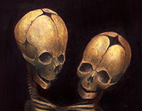 Sisters - Thoracopagus
