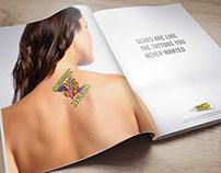 Neosporin | Print Ads