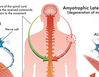 An Introduction to Early ALS Symptoms