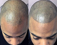 Treated With Scalp Micropigmentation