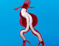 Vascutek | Aortic Device 3D Illustrations