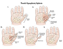 An Overview of Thumb Hypoplasia