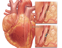 Coronary Catheter Application