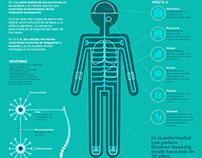ELA - Infografía | ALS - Infographic