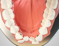 OLA | Ortodoncia Lingual
