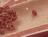 Atherosclerosis: A Pathology Illustration