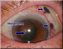 Ocular Melanoma - Causes and Progression