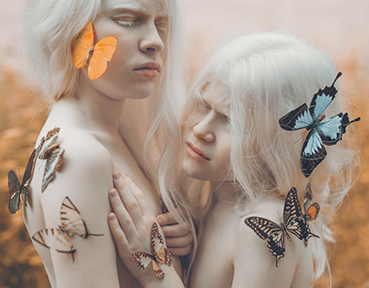 Albinism