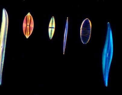 Dark-field microscopy