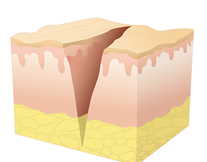 Wound Healing Diagrams
