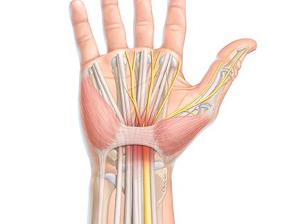 Anatomie du poignet et libération du canal carpein