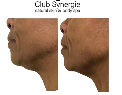 Get Skin Tightening Treatment at Club Synergie