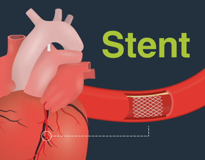 Stent - Infographic