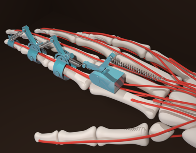 Support Exoskeleton for Physical Therapy