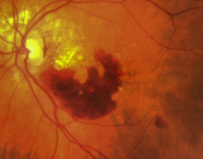 Ophthalmic Photos