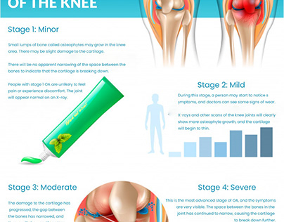 Know all about Arthritis: DeNiel Foot & Ankle Center