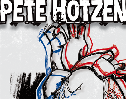 Pete Hotzenblotz