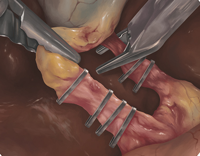 Surgical Illustration (In Progress)