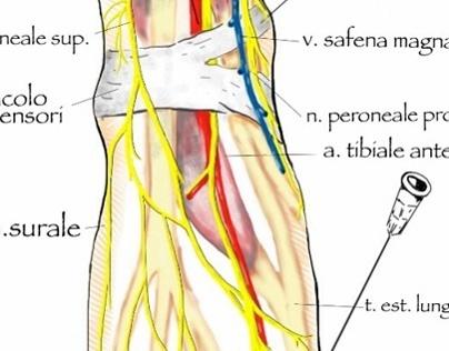Anesthesia for orthopedia