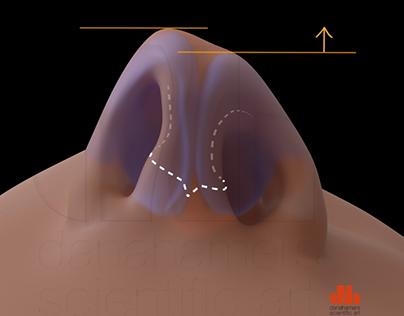 Rhinoplasty cleft lip (3D)