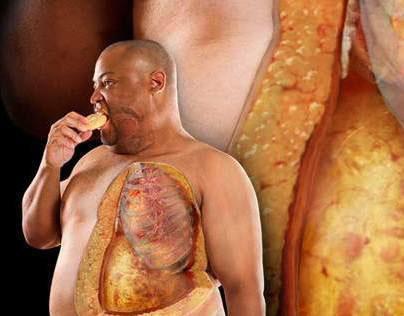Medical Image - pathology