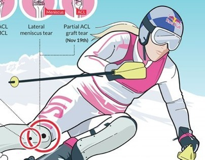 Red Bull: Lindsey Vonn Recovery INFOGRAPHIC