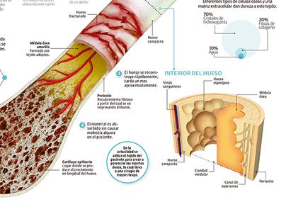 Injerto sintético mejora regeneración de tejido óseo