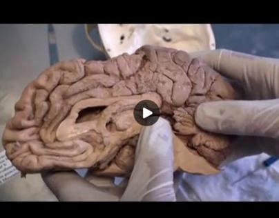 Cerebellum Dissection Video 2–Sagittal – Sanjoy Sanyal