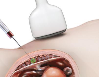 Chorionzottenbiopsie