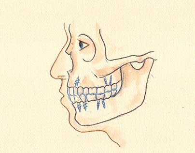 Implante basal maxilar monobloque