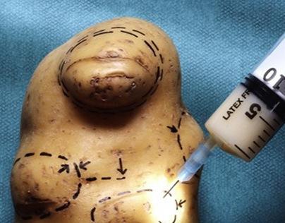Liposuction_Potato