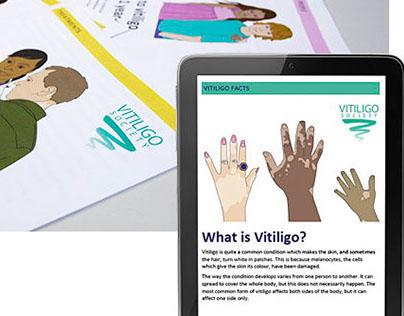 Vitiligo Society - information ebooklets