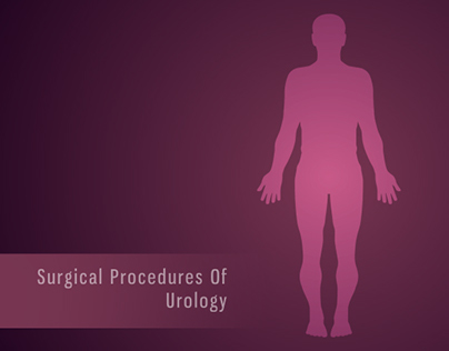 Surgical Procedures/ Medical Animation