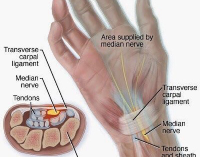 Musculoskeletal Disorders and Office Ergonomics