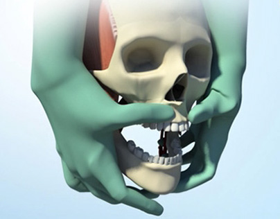 Surgical Animation for Education - Le Fort I Osteotomy