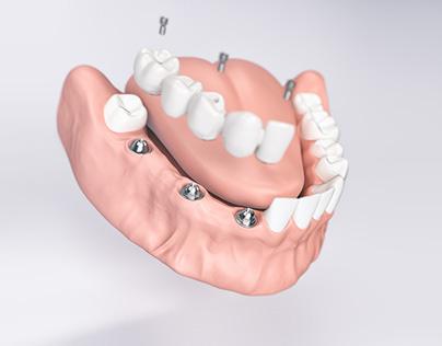 Thommen Medical - Swiss Implantology