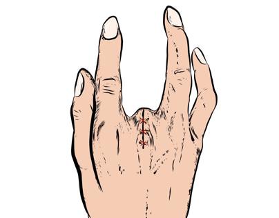 Surgery Illustrations
