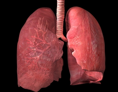 A 3D Interactive Learning Tool for Cystic Fibrosis