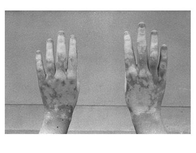 Vitiligo Project
